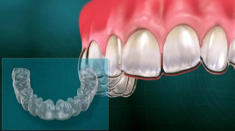 Invisalign nevidni zobni aparat